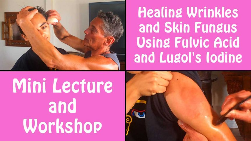 Healing Wrinkles and Skin Fungus Using Fulvic Acid and Lugol's Iodine