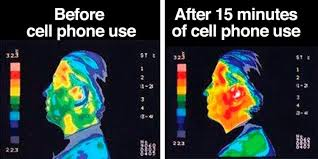 Thermography Of The Skull Before And after Cell Phone Use