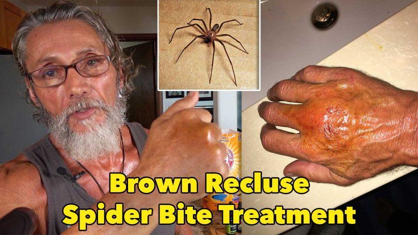 Brown Recluse Spider Bite Treatment