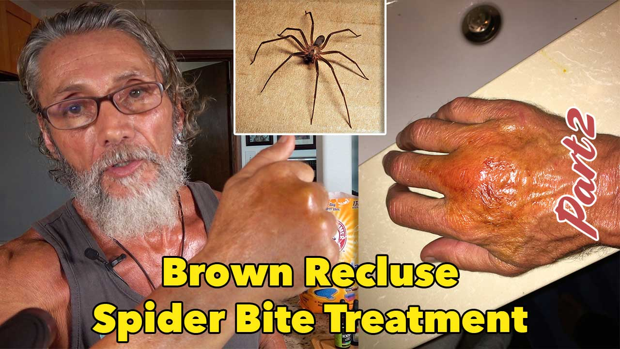 Brown Recluse Spider Bite Treatment Part 2